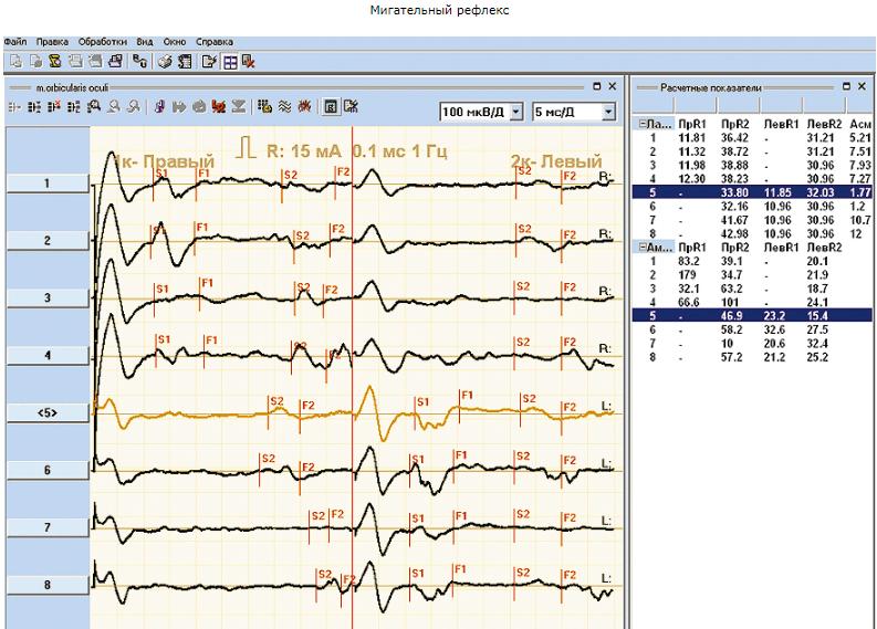 Нейромиоанализаторы НМА-4-01 «Нейромиан» 4-канальный