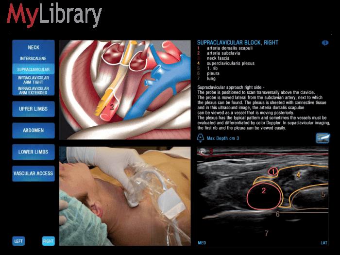 Портативная ультразвуковая система Esaote MyLab One