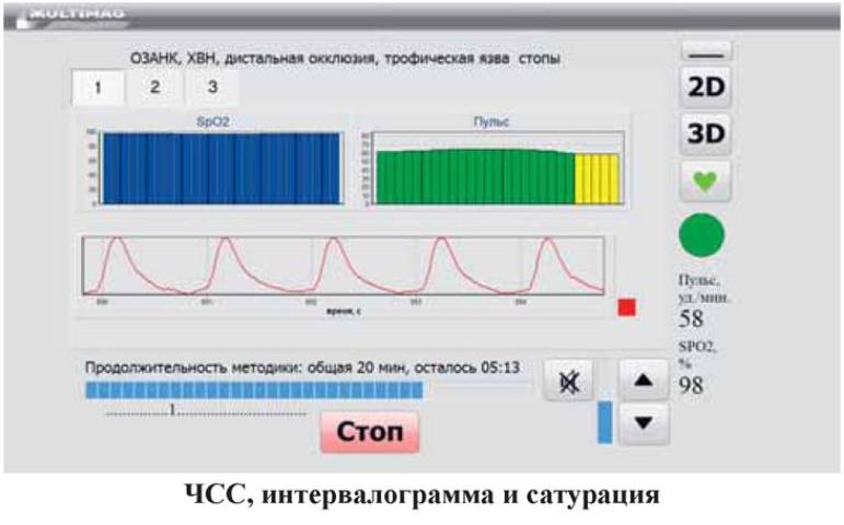 Комплекс КАП-МТ-8 МУЛЬТИМАГ